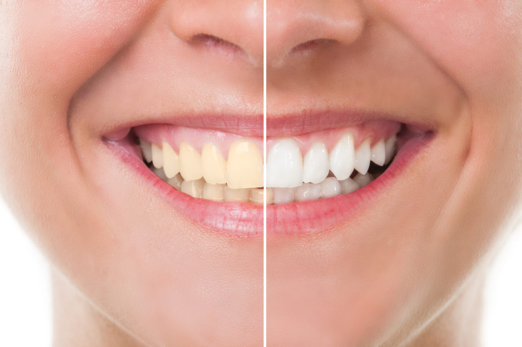 Before and after photo of whitening teeth with Zoom